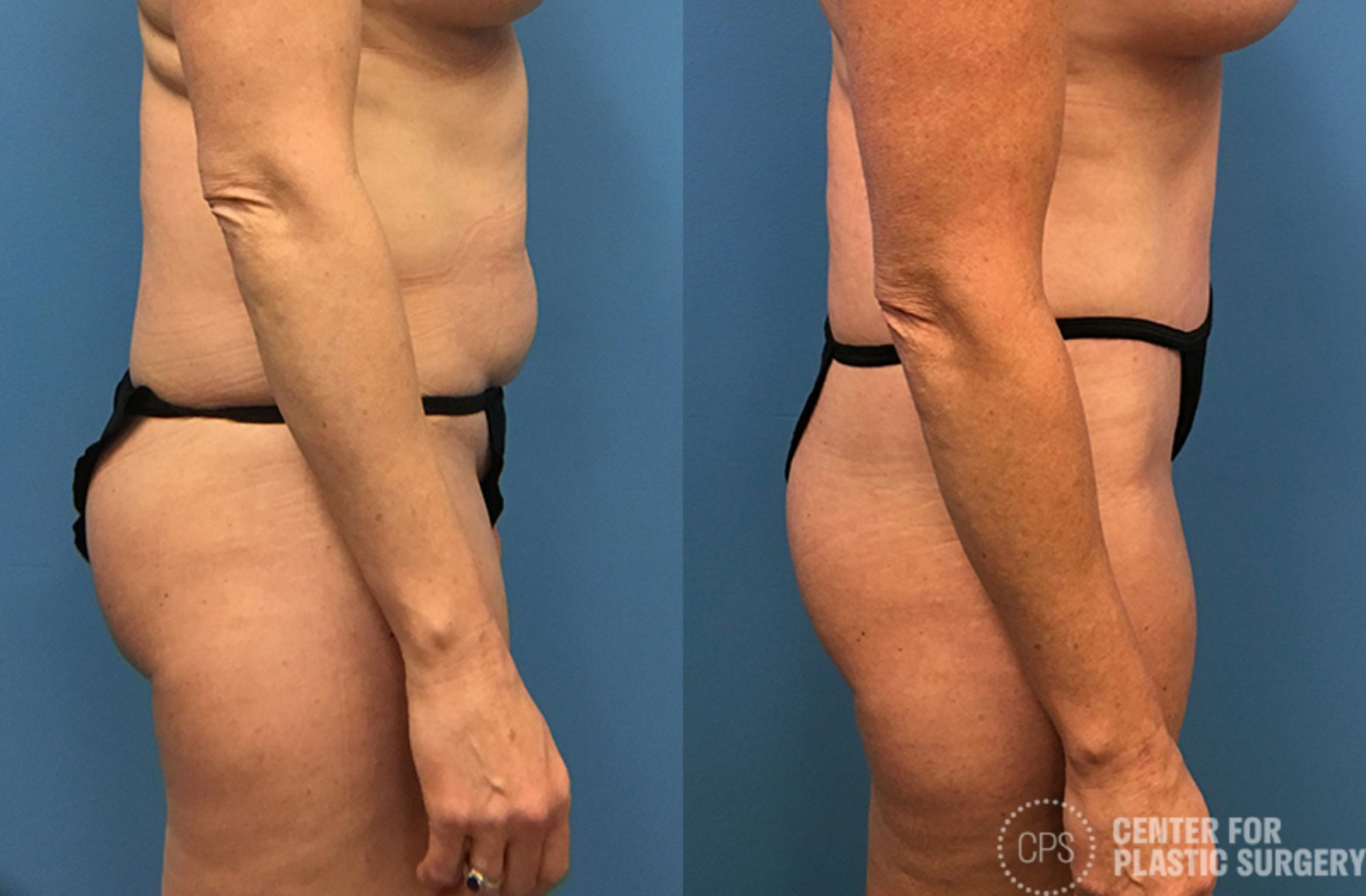 Tummy Tuck Before & After Photo | Annandale, Virginia | Center for Plastic Surgery
