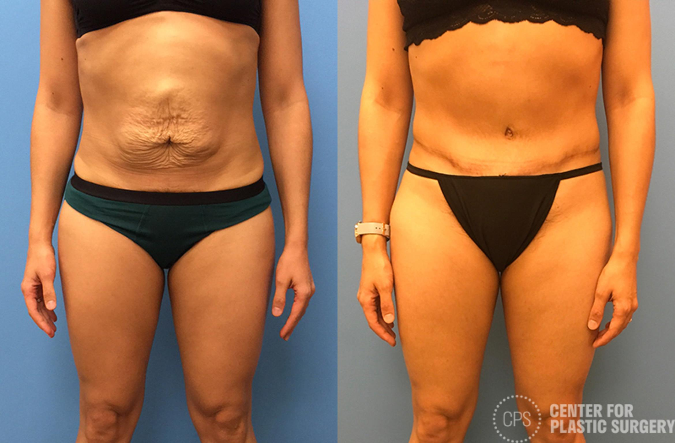 Tummy Tuck Case 50 Before & After Front | Annandale, VA & Chevy Chase, MD, Washington D.C. Metropolitan Area | Center for Plastic Surgery