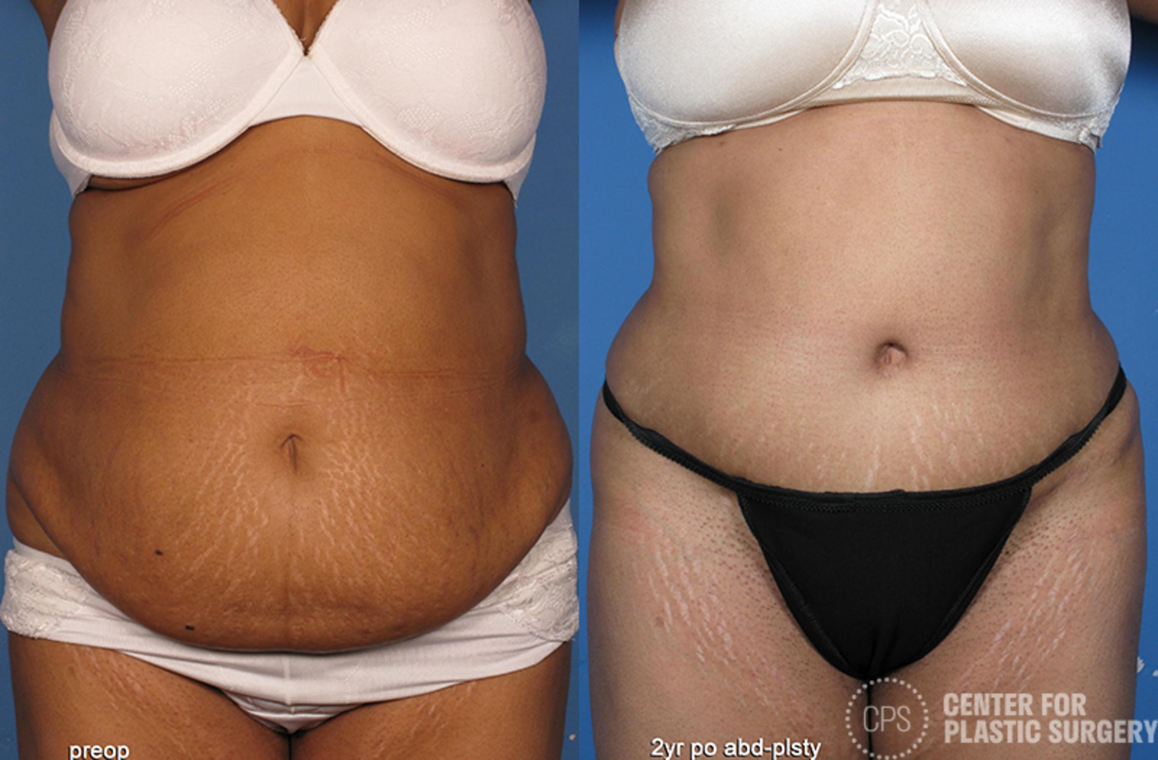 Tummy Tuck Case 53 Before & After Front | Washington DC, Bethesda & Chevy Chase, Washington D.C. Metropolitan Area | Center for Plastic Surgery
