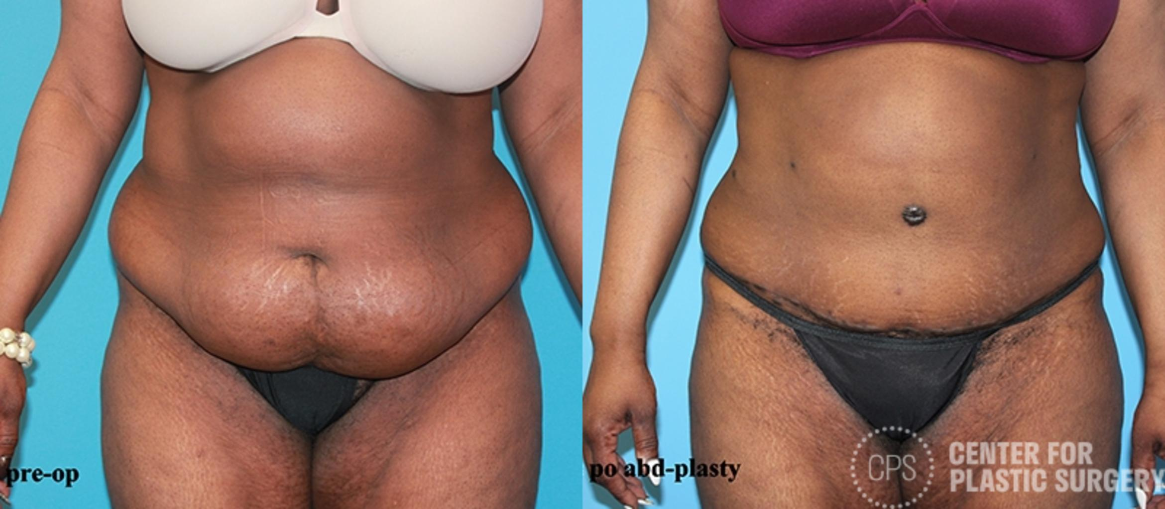 Tummy Tuck Case 54 Before & After Front | Washington DC, Bethesda & Chevy Chase, Washington D.C. Metropolitan Area | Center for Plastic Surgery