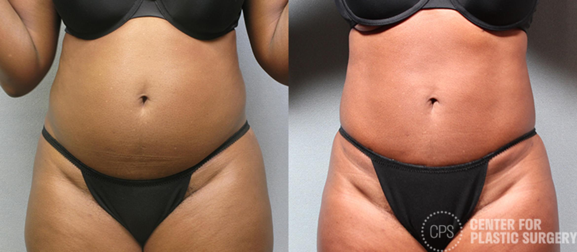 Tummy Tuck Case 55 Before & After Front | Annandale, VA & Chevy Chase, MD, Washington D.C. Metropolitan Area | Center for Plastic Surgery