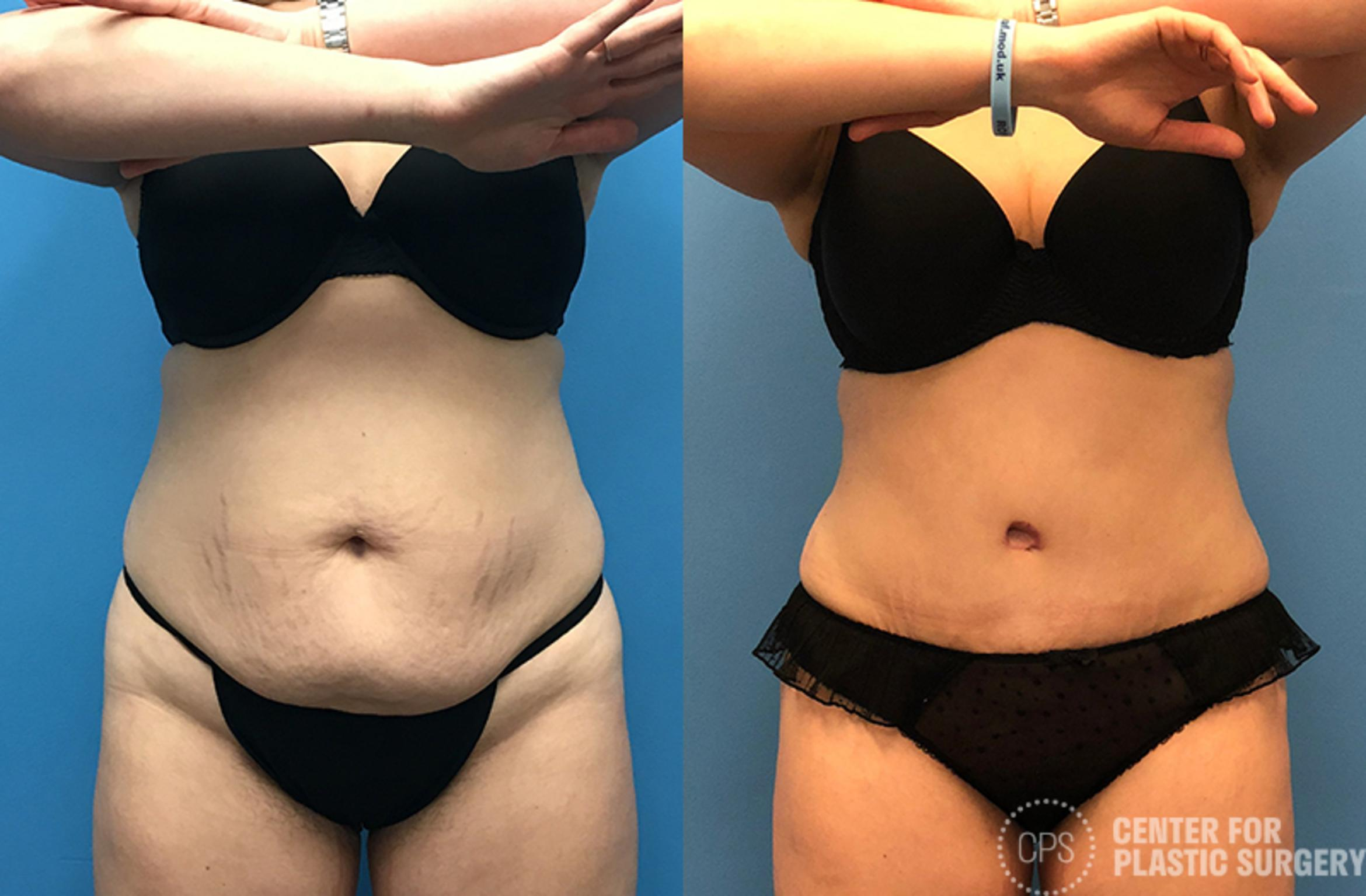 Tummy Tuck Case 56 Before & After Front | Annandale, VA & Chevy Chase, MD, Washington D.C. Metropolitan Area | Center for Plastic Surgery