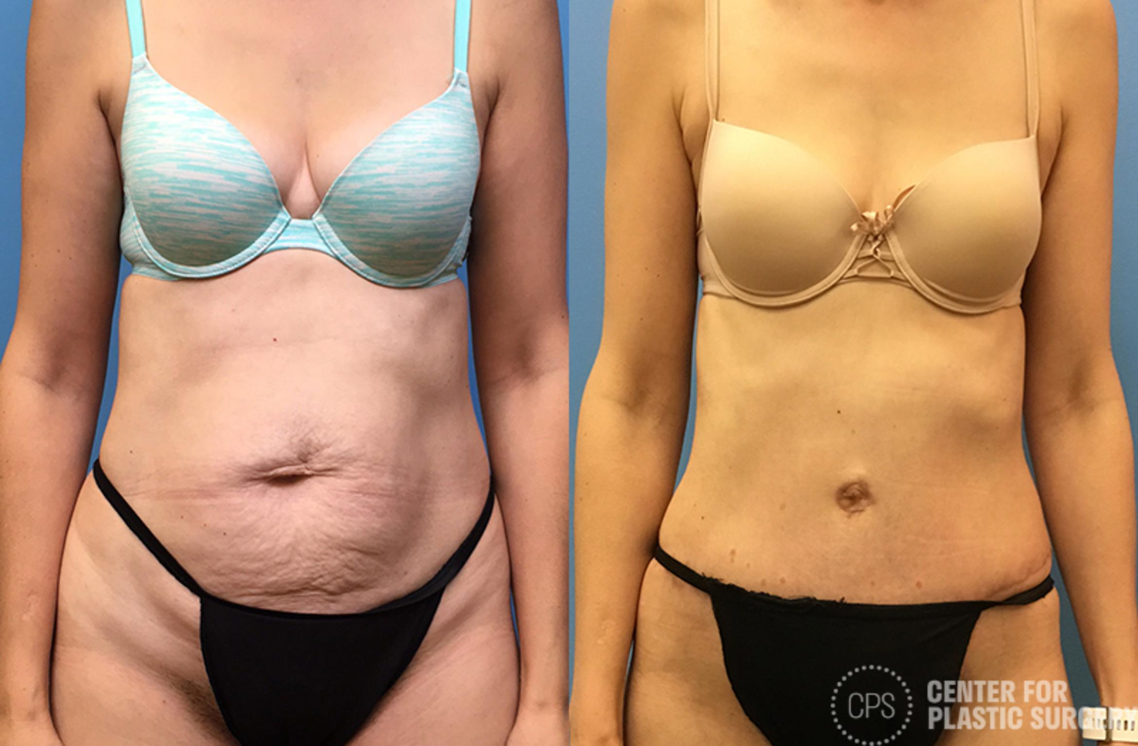 Tummy Tuck Case 64 Before & After Front | Annandale, VA & Chevy Chase, MD, Washington D.C. Metropolitan Area | Center for Plastic Surgery